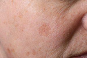 Altersflecken? Mit unseren Hausmitteln helfen wir dir deine Haut wieder in Schuss zu bekommen. © fpic