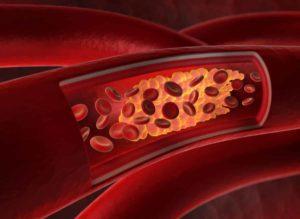 Verkalkte Arterien? Mit unseren Hausmitteln kannst du vorbeugen. Alte bewährte Tipps unserer Ahnen. © psdesign1