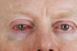 Bindehautentzündung mit Hausmitteln behandeln