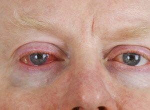 Bindehautentzündung? Mit unseren bewährten Hausmitteln kannst du mit der Behandlung beginnen. © Birgit Reitz-Hofmann