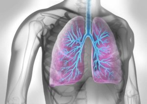 Bronchitis mit Hausmitteln behandeln