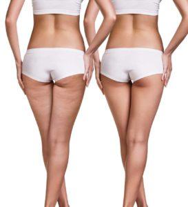 Cellulite mit Hausmitteln behandeln
