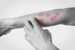 Hautausschlag mit Hausmitteln behandeln