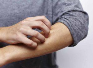 Die Haut juckt? Unsere Hausmittel helfen dir den Juckreiz loszuwerden. © miamariam
