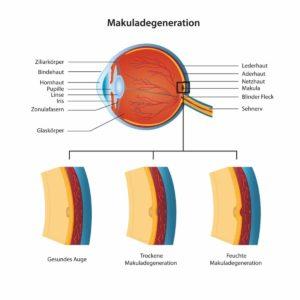 Makuladegeneration mit Hausmitteln behandeln