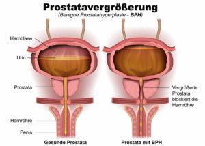 Prostatabeschwerden mit Hausmitteln behandeln