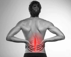 Rückenschmerzen mit Hausmitteln behandeln