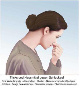 Schluckauf? Unsere Tipps aus der Volksmedizin helfen dir um den Schluckauf schnell wieder los zu werden. © Henrie