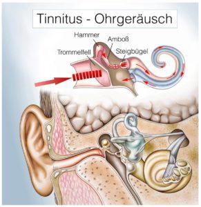 Tinnitus mit Hausmitteln behandeln