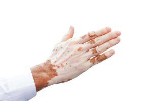 Vitiligo mit Hausmitteln behandeln