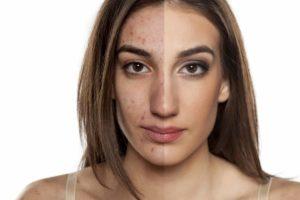 Hautprobleme? Mach dir keine Sorgen. Unsere Hausmittel bringen deine Haut wieder auf Vordermann. © vladimirfloyd