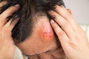 Kopf gestoßen? Eine Beule kann sehr schmerzhaft sein. Unsere Hausmittel helfen dir die Schwellung los zu werden. © ThamKC