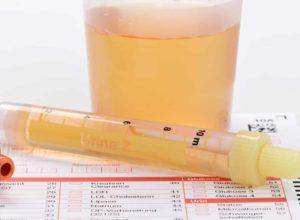 Blut im Urin? Mit unseren Hausmitteln helfen wir dir bei der Behandlung. Ein Arzt sollte aber dennoch zu Rate gezogen werden. © Henrik Dolle