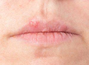 Fieberblasen Mit unseren Hausmitteln kannst du schnell und unkompliziert mit der Behandlung beginnen. © bmf-foto.de