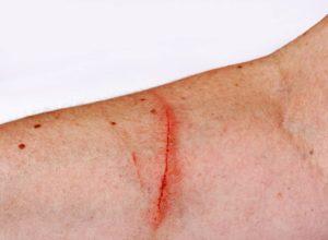 Haut Verletzung? Mach dir keine Sorgen. Wir haben jede Menge gute Tipps die dir helfen. © Astrid Gast
