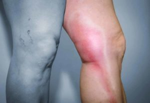 Geschwollene Beine mit Hausmitteln behandeln