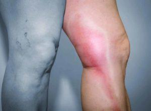 Beine geschwollen? Mit unseren Hausmitteln helfen wir dir dabei die Schwellung zu behandeln. © hriana