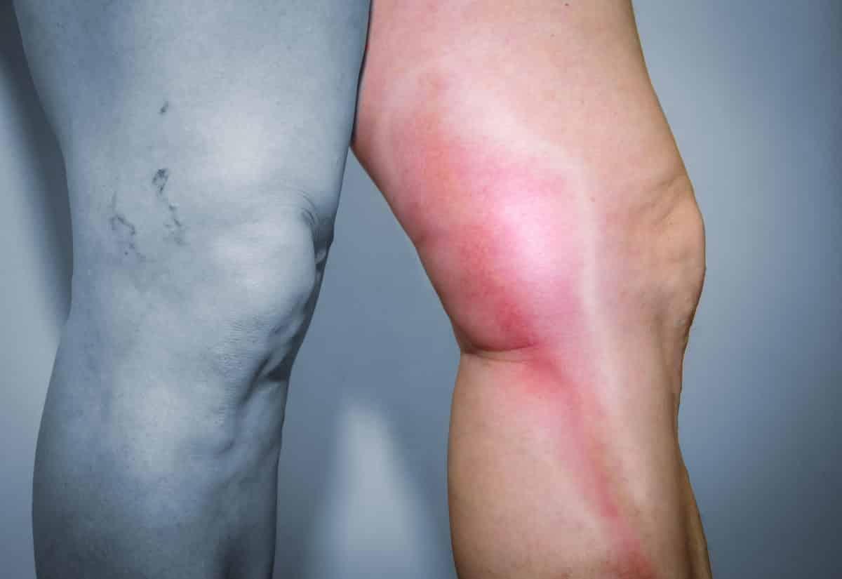 Geschwollene Beine Mit Hausmitteln Behandeln Schnelle Hilfe