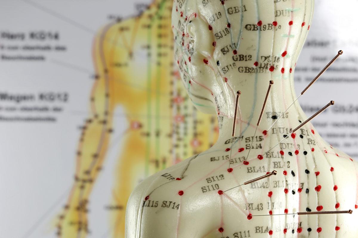 Erfahre mehr über Akupunktur und die Anwendung um die verschiedensten Krankheiten zu behandeln. Fotolia © Björn Wylezich