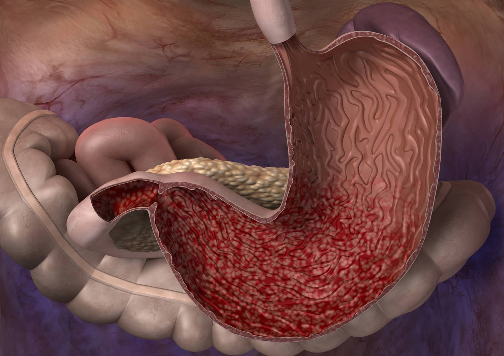 Magenschleimhautentzündung? Wir haben die perfekten Hausmittel um dir bei einer schnellen Behandlung zu helfen. Fotolia © Alex